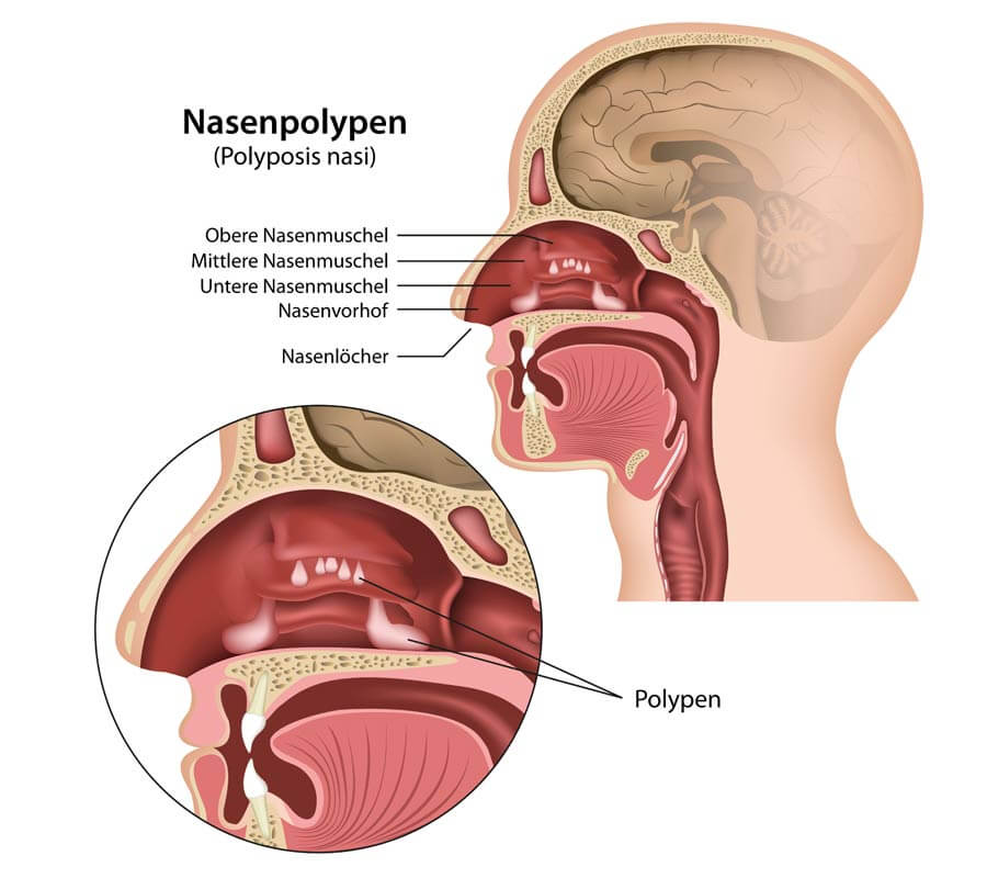 nasal illustration design